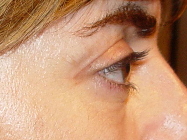 Cirugía cosmética palpebral (blefaroplastia)